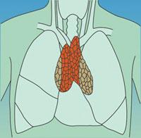 Thymusdrüse Zu Groß